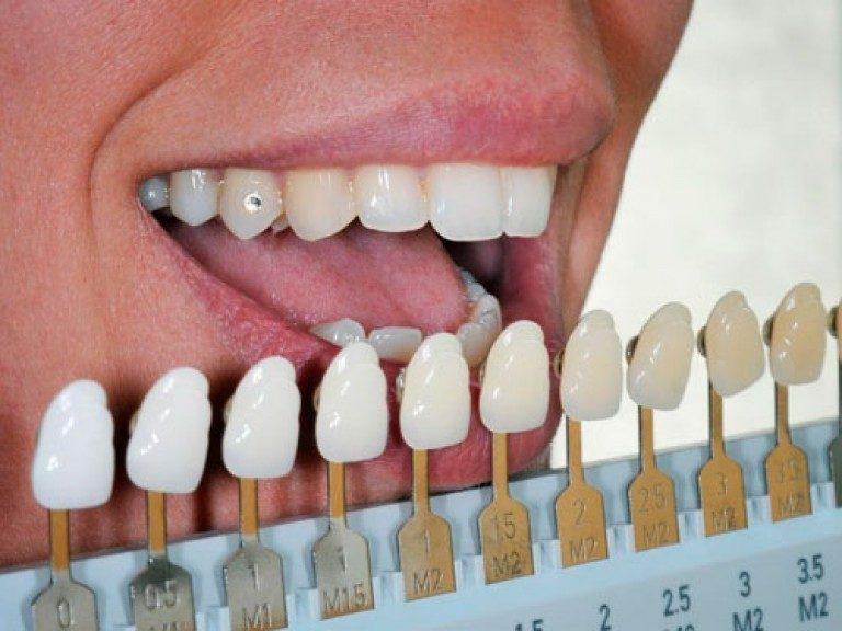 Безопасное отбеливание зубов. Безопасное отбеливание зубов в нашей стоматологии