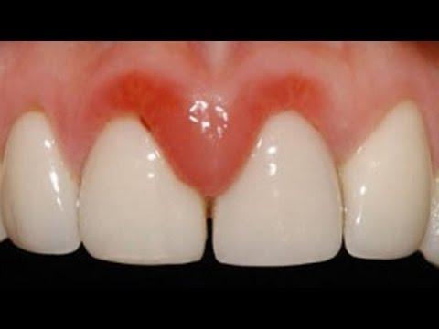 Воспаление десен фото и лечение