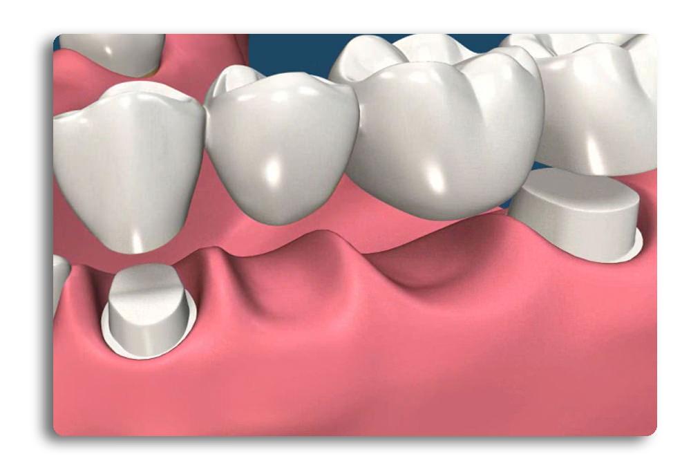 виниры на жевательные зубы