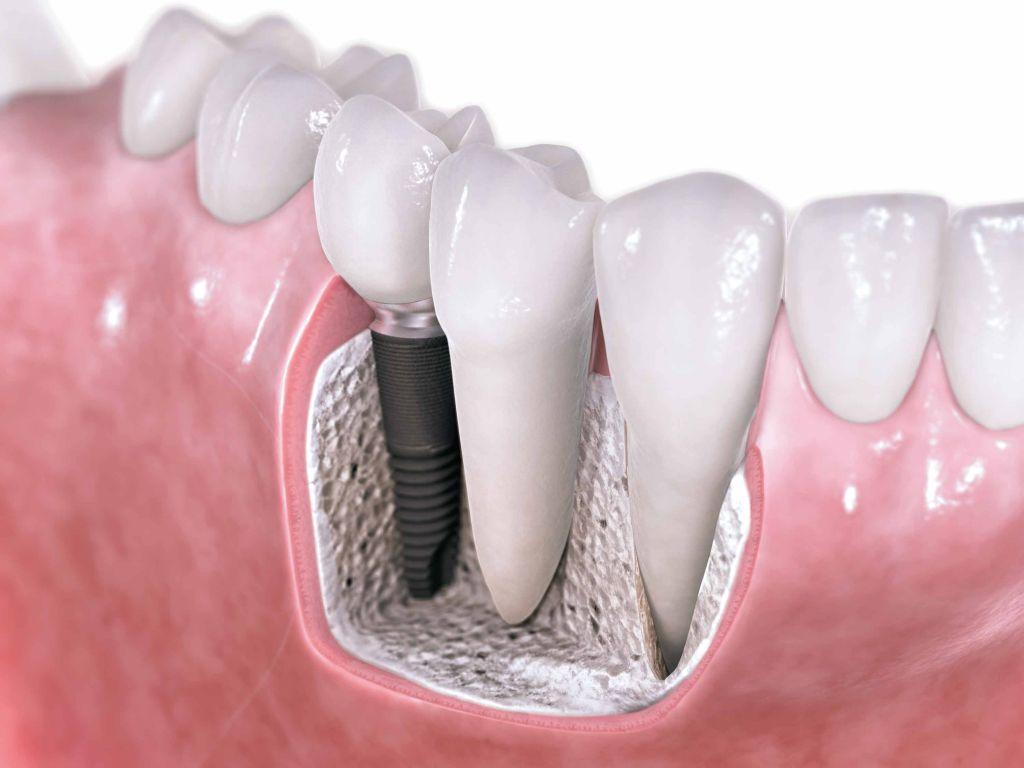 Выращивание зубов сколько стоит 58