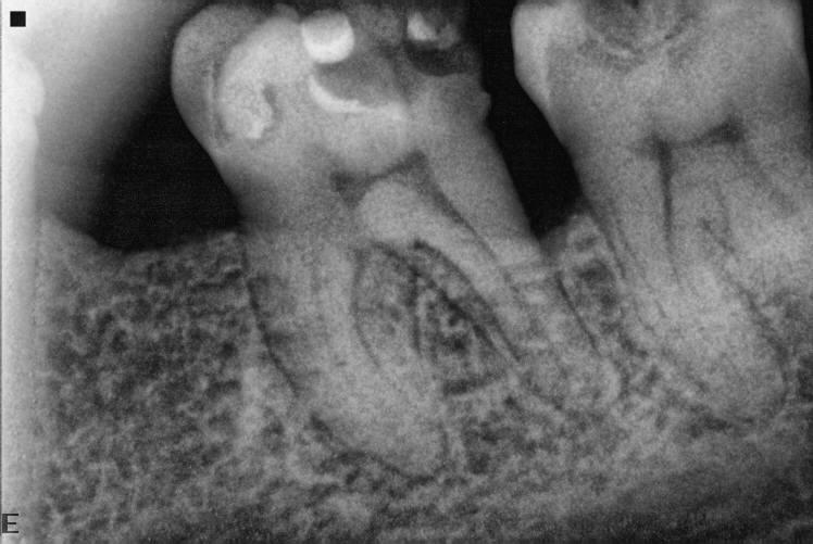 Склерозированные каналы зуба как лечить